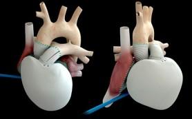 Пациент с искусственным сердцем вернулся к активной жизни и спорту