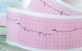 Смертность от сердечно-сосудистых заболеваний в России в пять раз выше, чем в Европе