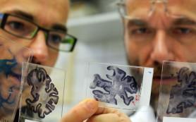 Новый препарат показал эффективность в лечении болезни Альцгеймера