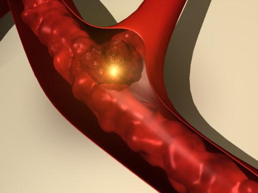 Растворить тромб и не навредить организму