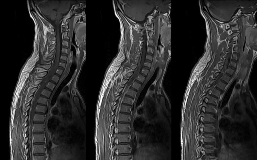 Исследование грудного отдела позвоночника с помощью МРТ