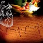 Установлена генетическая мутация, приводящая к развитию сердечного заболевания