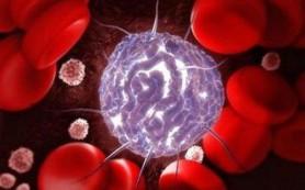 Стволовые клетки исцеляют инсульт
