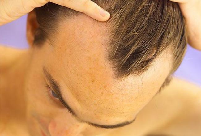 Лысеющие мужчины более подвержены сердечным заболеваниям