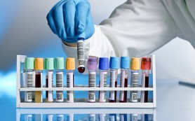 Анализ крови позволит оценить риск развития болезни Альцгеймера
