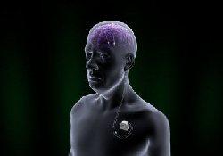 «Аппаратный» метод лечения болезни Паркинсона одобрен