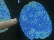Биполярное расстройство нарушает процесс развития мозга