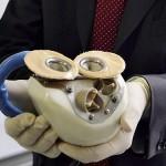 Carmat установит искусственное сердце четвертому пациенту