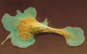 Ученые смогут собрать сердце по клеткам?