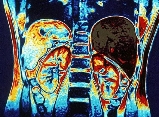 МРТ брюшной полости