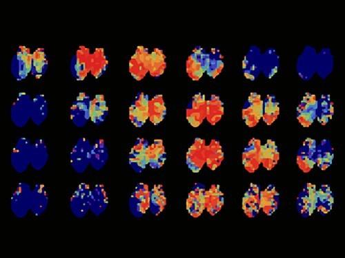 Ученые выяснили, как мозг «узнает» время года