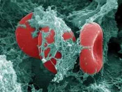 Терапия тестостероном не связана с риском развития венозного тромбоэмболизма