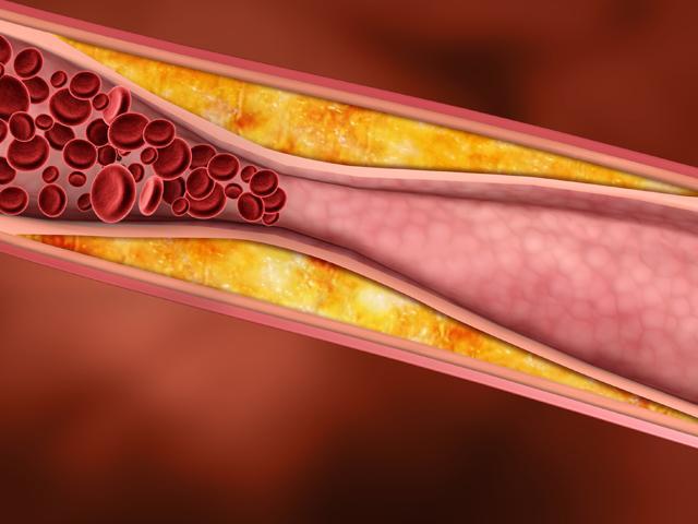 Кардиохирург: миф о холестерине