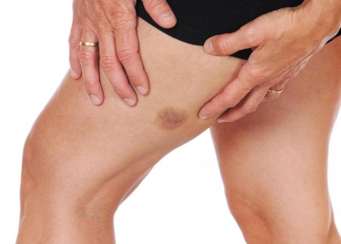 Симптомы тромбоза