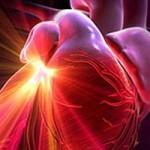 Острая сердечнососудистая недостаточность