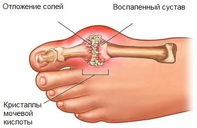 Подагра – симптомы и лечение