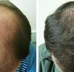 Как остановить патологическое выпадение волос?