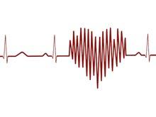Открытие: у сердечно-сосудистых заболеваний и деменции много общих факторов риска