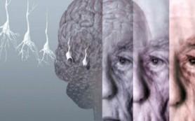 Ученые назвали Топ-9 факторов риска болезни Альцгеймера