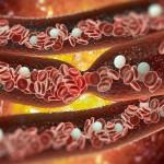 Новая технология обнаружения тромбов подсвечивает их во всем теле