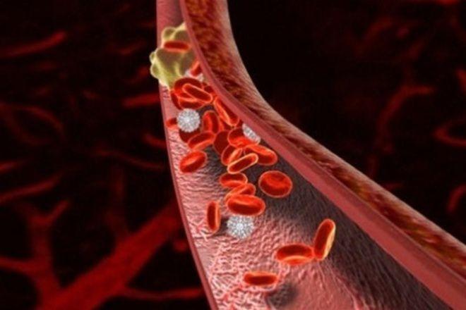 Сон и тромбоцитоз