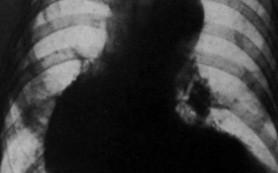 Фрукты снижают риск развития аневризмы аорты