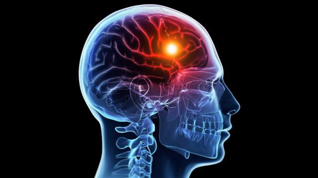 Медицинская помощь при инсульте должна быть быстрой и эффективной