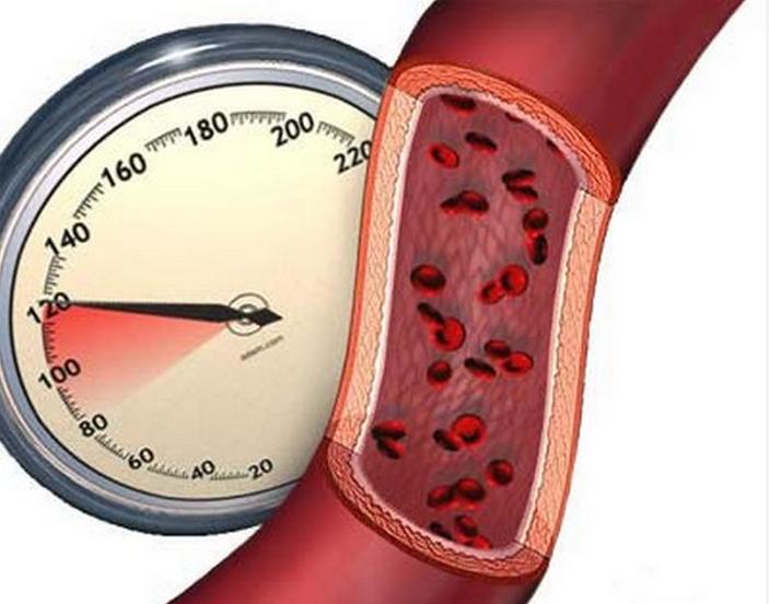 Эффективные народные средства лечения гипертонии