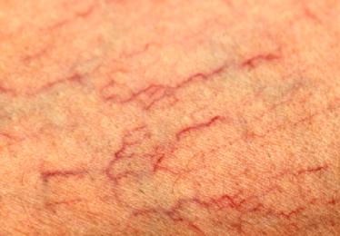 Красные сосуды на лице: как избавиться от купероза