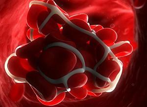 Диагностика тромбоза: американские ученые готовят революционный прорыв!