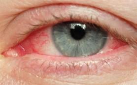 Заболевания офисных работников: как лечить синдром «сухого глаза»?