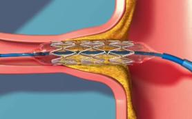 Аневризмы почечной артерии