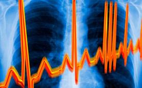 Причины появления аритмии сердца