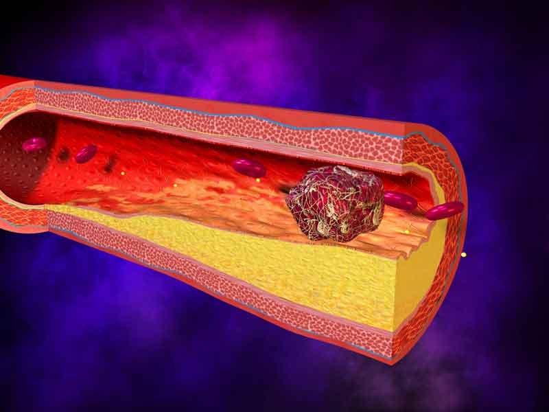 От формы фигуры зависит риск образования тромбов в сосудах