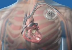 Одобрен к применению первый кардиовертер–дефибриллятор, совместимый с МРТ