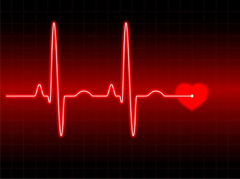 Выживаемость при остановке сердца является очень небольшой