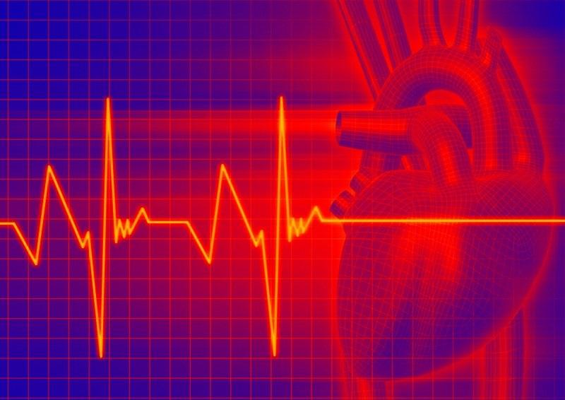 Как лечить тахикардию: советы врачей