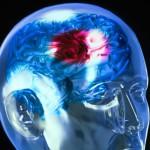 Инсульт может состарить мозг человека на целых 8 лет