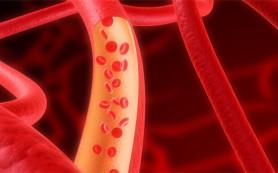 Ученым удалось снять основную диагностическую проблему атеросклероза