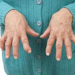 Больные ревматоидным артритом стали реже умирать от болезней сердца