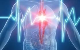Аритмия и причины ее возникновения