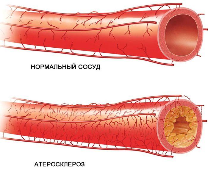 Особенности развития атеросклероза коронарных артерий