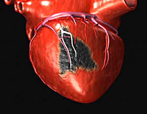 Ученые изобрели вакцину от инфаркта