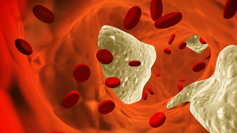 Ученые обнаружили атеросклероз в средневековых сердцах