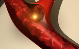 Нанотехнологии помогут врачам обнаружить тромбы