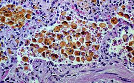 Ученые: сердечные клетки способны восстанавливаться в любом возрасте