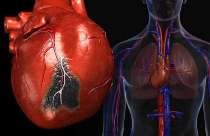 Чистка зубов спасет от инфаркта