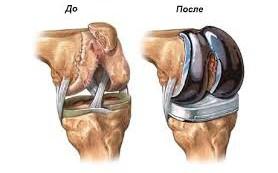 Особенности эндопротезирования суставов