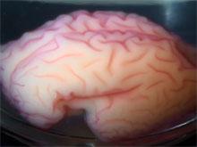 Исследователи поняли, почему в головном мозге образуются извилины