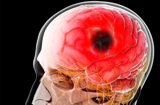Прием аспирина достоверно снижает риск нефатального инсульта